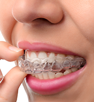 Clear Aligners - Almost Invisible Braces Bayside, NY